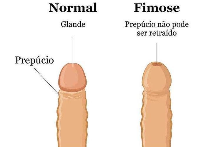 Fimose | Dr. Raphael Kato