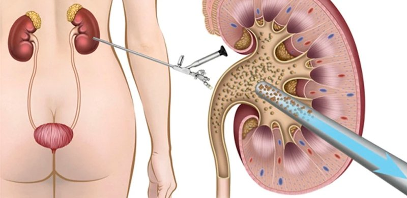 Nefrolitotripsia Percutânea   Dr. Raphael Kato