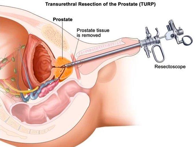 Ressecção Endoscópica da Próstata   Dr. Raphael Kato - Urologista